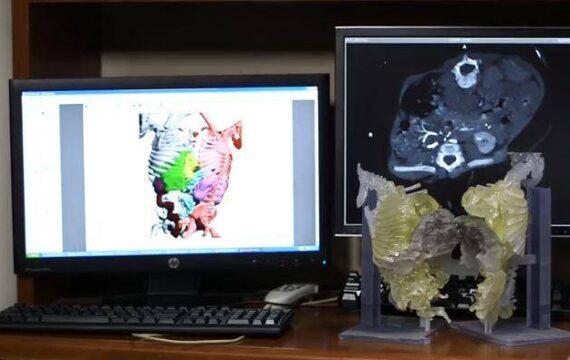 Operatie Siamese tweelingen voorbereid met CT scan en 3D print