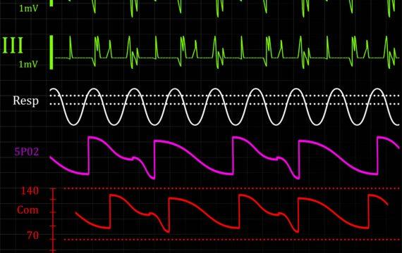 RIVM waarschuwt voor risico's nieuwe technologie – Nieuwsoverzicht van 24 november