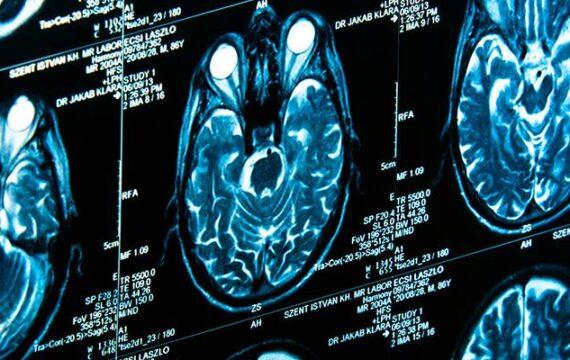 Philips, Hitachi DS komen met snel opslagsysteem voor medische beelden