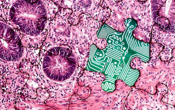 DT Healthcare: koppeling pathologiedeel in EPD Zorg op Zuid was 'uitdaging'