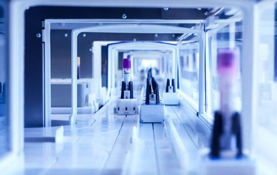 LUMC automatiseert en robotiseert verwerking bloedmonsters