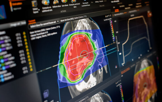Wetenschappers gebruiken AI succesvol voor stralingstherapie