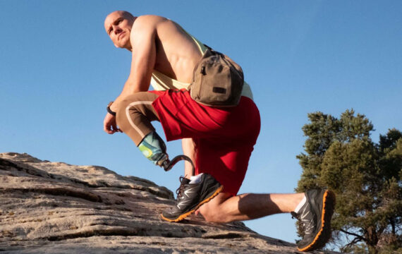 Slimme prothese verbetert kwaliteit van leven patiënt