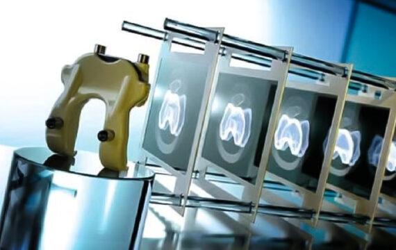 3D-printing ingezet bij knieprothese in Maastricht UMC+