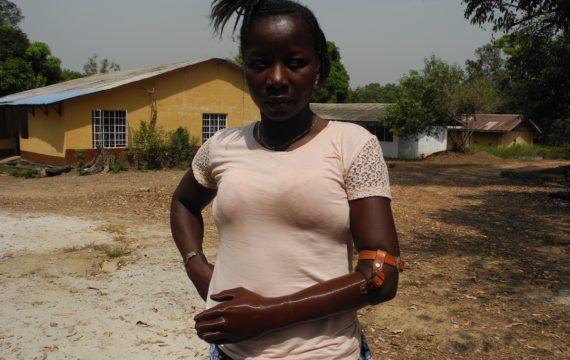 Student, chirurg in opleiding maken 3D-prothese voor Sierra Leone