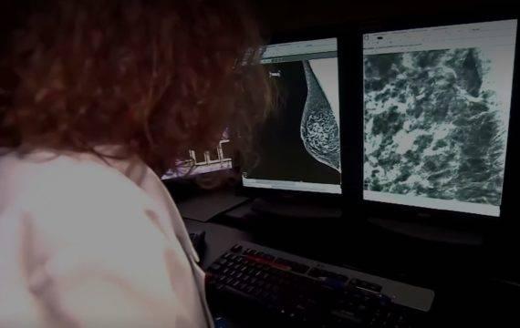Borstkanker diagnose nauwkeuriger met AI