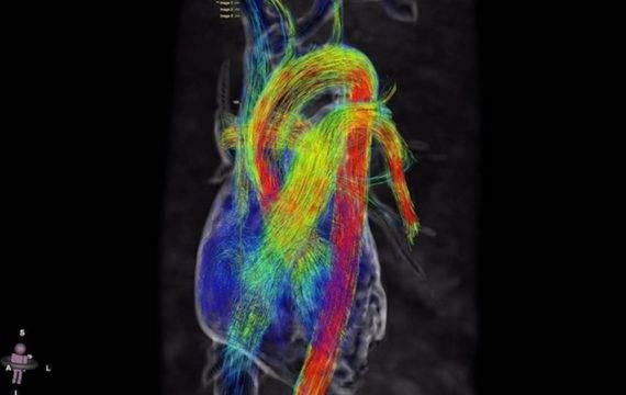 4D-MRI maakt bewegende live beelden van hartfunctie
