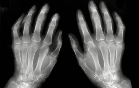 Onderzoek naar inzet AI voor vroegtijdige reuma diagnose