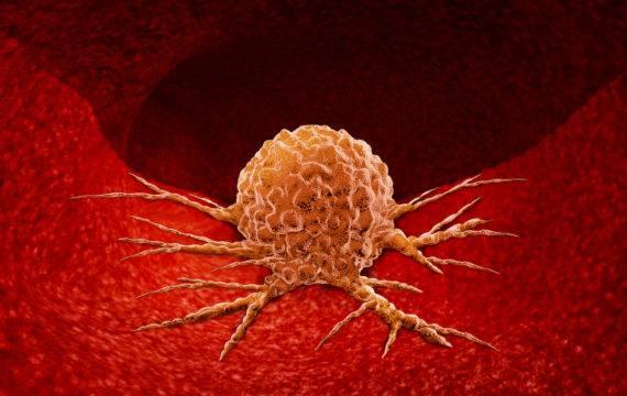 Zeldzame tumoren onderzoeken met Personal Health Train