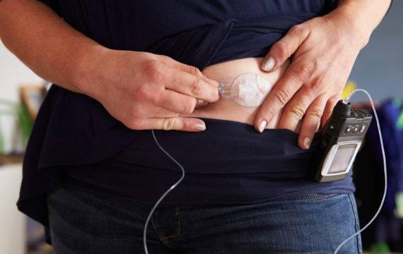 Nieuwe studie extra indicaties sensortechnologie diabetici