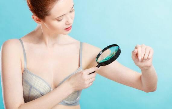 CZ faciliteert opsporen huidkanker met Skinvision-app