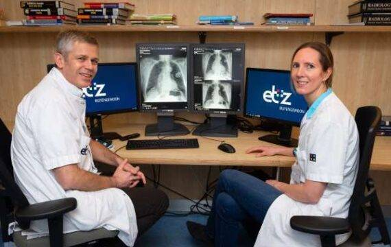 AI-algoritme helpt radiologen met beoordelen longfoto's