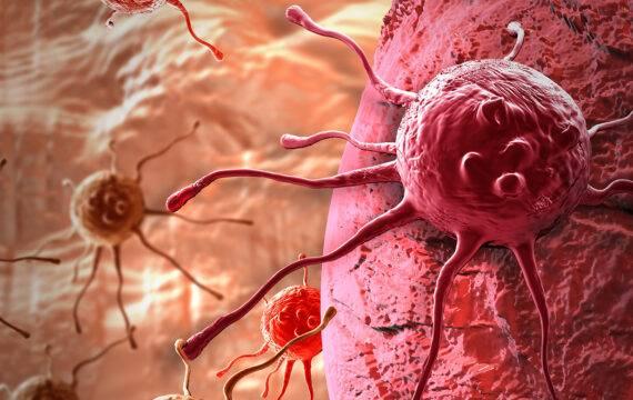 Kankeronderzoek gebaat bij Personal Health Train