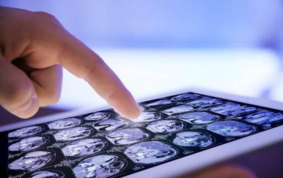 AI in topklinische en algemene ziekenhuizen: de stand van zaken