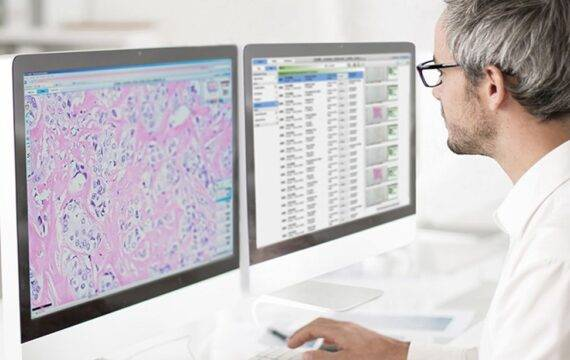 AI-innovaties als katalysator voor digitale pathologie